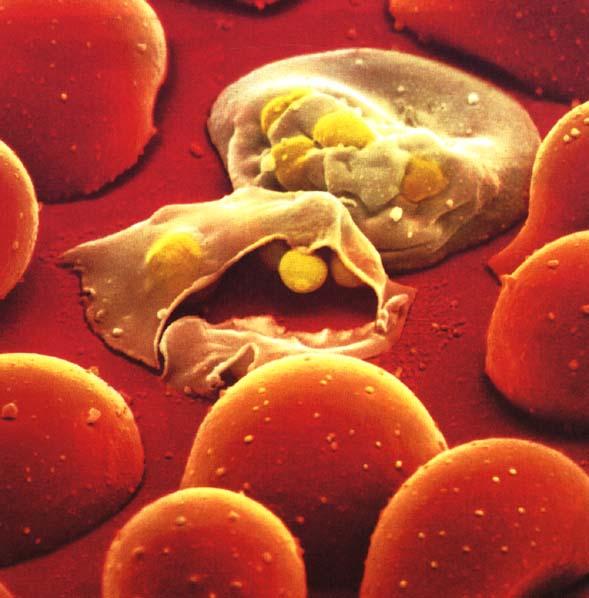 http://www.sochipe.cl/subidos/noticias2/fotos/Malaria4.jpg