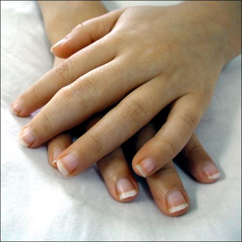 Rheumatoid arthritis, rhuematoud arthritis, arthritis in hands